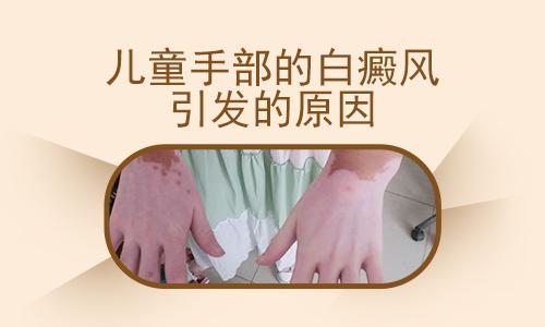 合肥白癜风病因